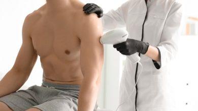 أسعار إزالة الشعر بالليزر عند الرجال