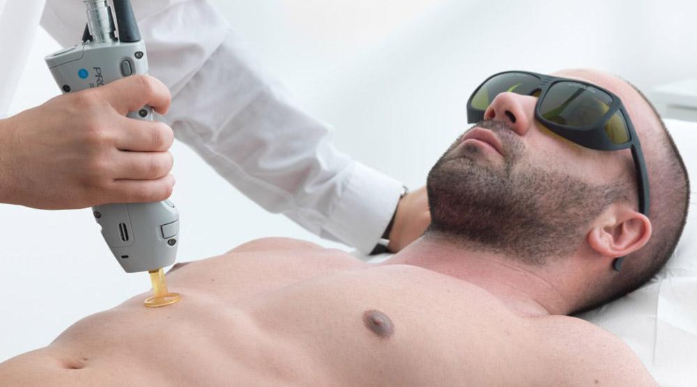 ازالة شعر الصدر والبطن بالليزر للرجال