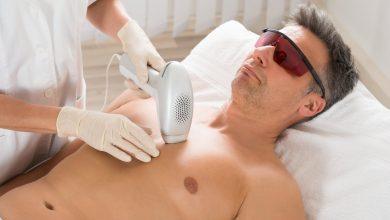 ازالة شعر البطن والصدر بالليزر للرجال