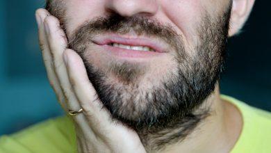 انبات شعر اللحية