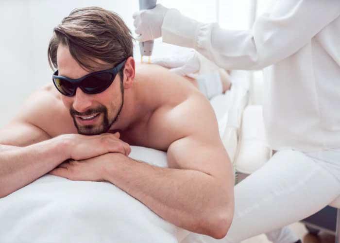 تجربة إزالة الشعر بالليزر عند الرجال