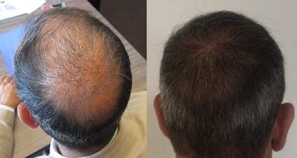 علاج تساقط الشعر الوراثي عند الرجال