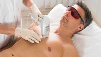 عيادة إزالة الشعر بالليزر للرجال