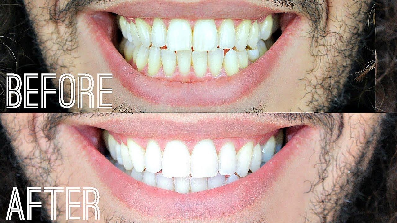 تبييض الأسنان للرجال