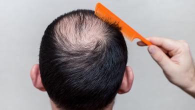 منع تساقط الشعر نهائيا