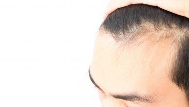 منع تساقط الشعر للرجال
