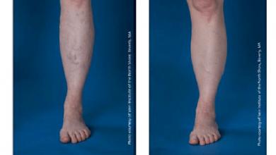 دوالي الساقين عند الرجال