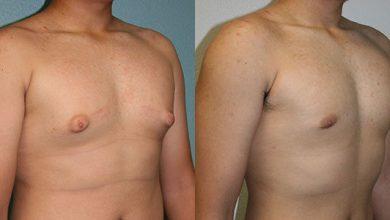 التخلص من التثدي عند الرجال